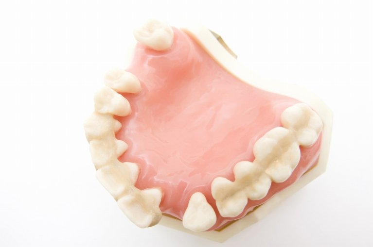 歯周病は歯を失う一番の原因です